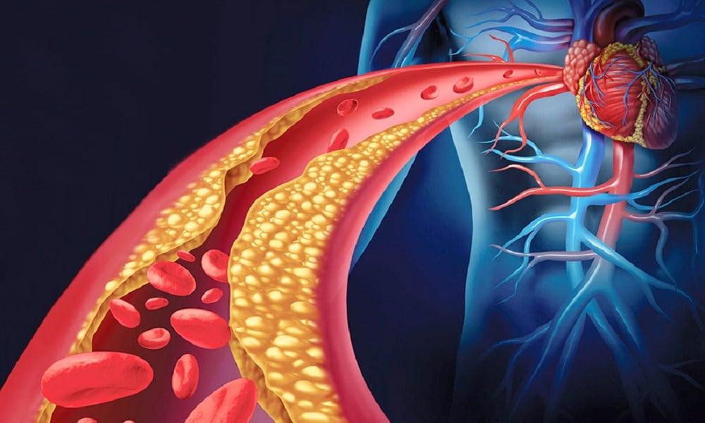 Colesterol: especialistas explicam os riscos para a saúde e como prevenir
