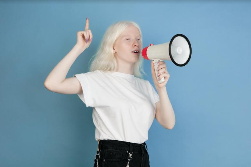 Dia Mundial da Conscientização do Albinismo gera reflexão sobre preconceito e afirmação albina perante a sociedade